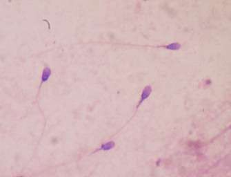 Odpůrci limitů chtějí testovat spermie